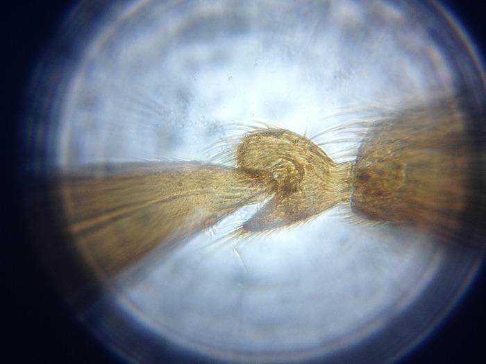 Smartphone als fach vergrößerndes mikroskop tech